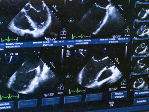 ultrasound-509396_1920 (1).png